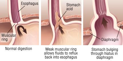 Hernie diaphragmatique et reflux