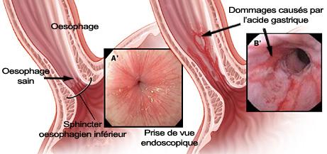 Inflammation de l'oesophage