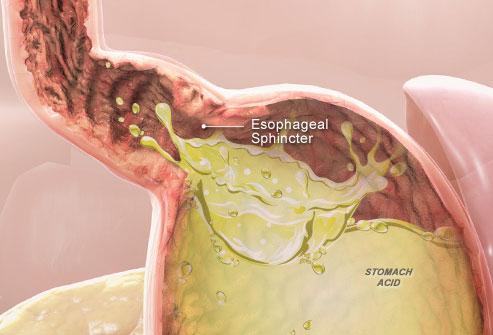 Sphincter oesophagien