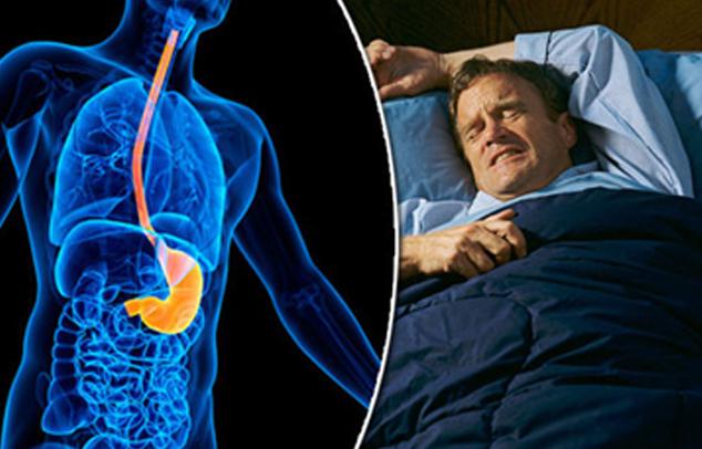 Reflux gastrique-douleurs